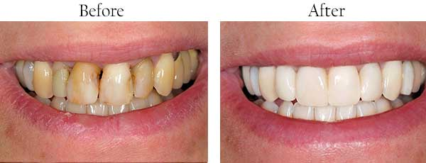 Before and After Teeth Whitening in West Islip