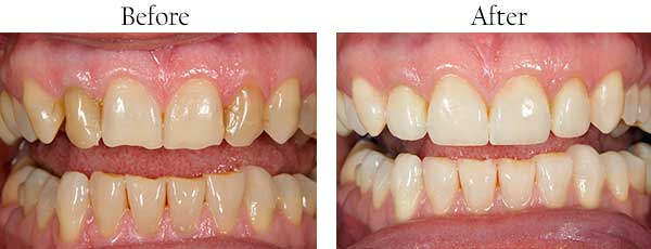 Before and After Invisalign in West Islip