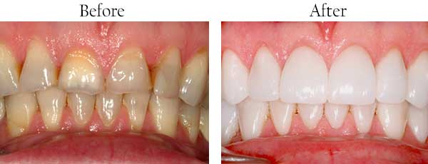 West Islip Before and After Dental Implants