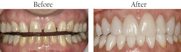 Before and After Dentures in West Islip