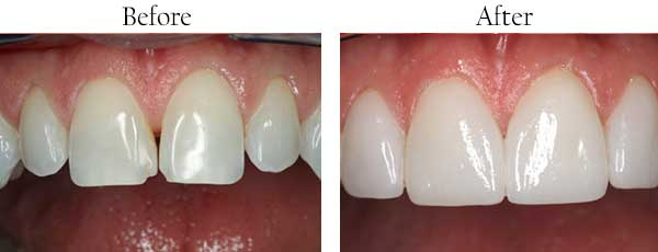 Before and After Tooth Veneers in West Islip